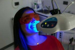 Sbiancamento dentale Imperia