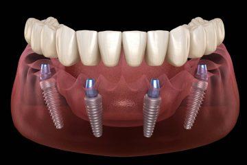 Denti fissi in 24 a Imperia
